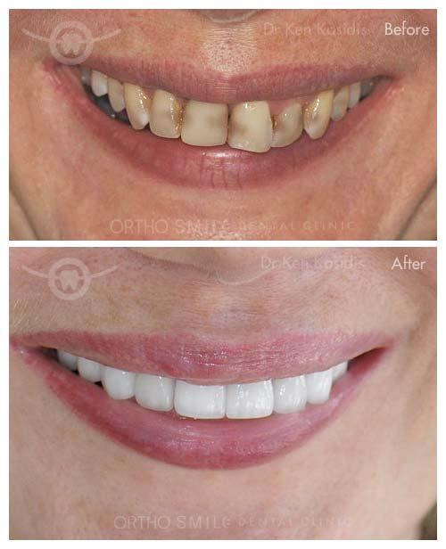 Dentist Dental In Pattaya