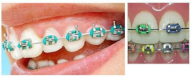 Traditional braces made of high grade stainless steel