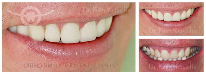 Full mouth rehabilitation with ceramic crowns 4