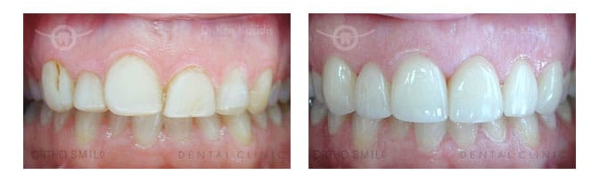 Gum Lifting And Contouring Orthosmiledental Clinic