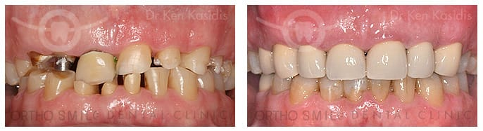 Full mouth rehabilitation with ceramic crowns 1