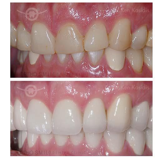 Cosmetic Crowns And Bridges Orthosmiledental Clinic